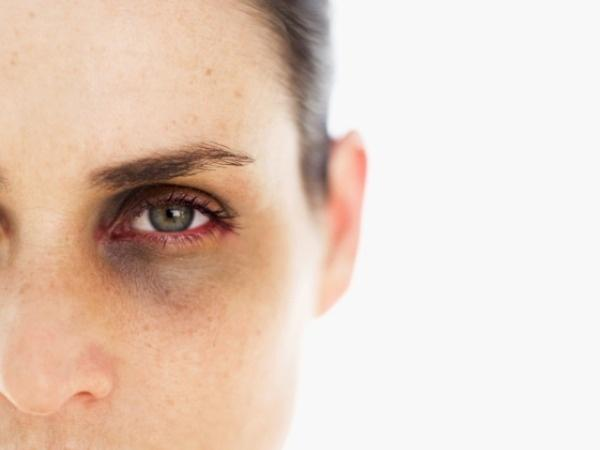 The Truth About Dark Circles: Causes and Links to Diseases