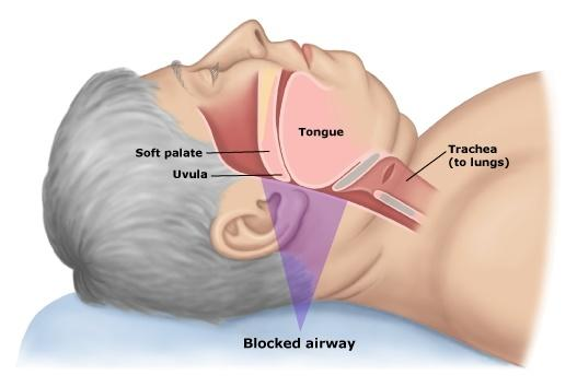 Obstructive Sleep Apnea Treatment: Transoral Robotic Surgery