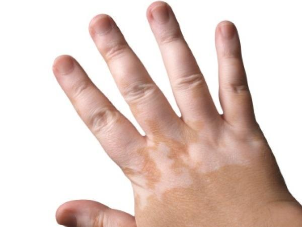 Skin Problems: What is Vitiligo, Causes, Myths and ...