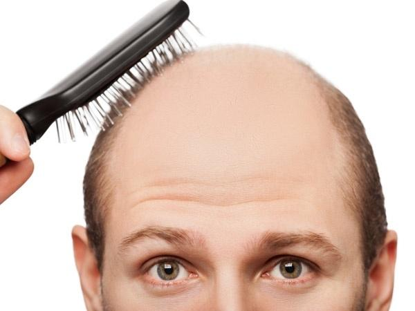 Dermatologist Recommended Treatments for Hair Loss in Men