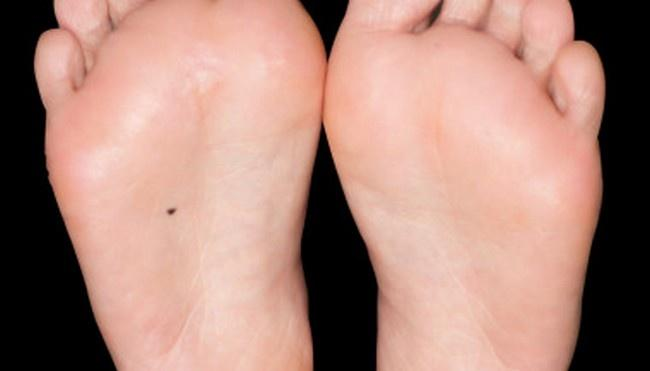 Freckle on bottom of foot meaning