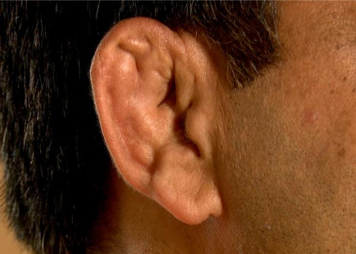 Have You Ever Wondered Why Wrestlers Have Disfigured Ears