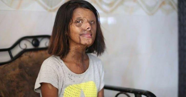 acid attack survivor