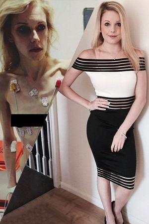 These Before And After Images Of People Who Overcame Anorexia Is Nothing Short Of Inspirational
