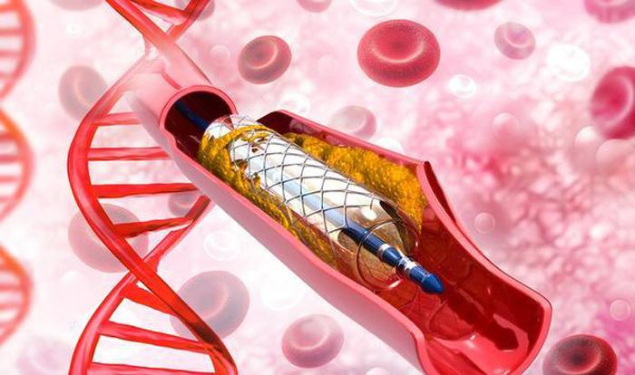 Government Invokes Emergency Power To Prevent Stent Shortage