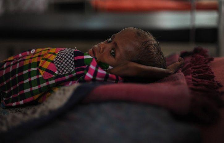 Anaemia Pose Huge Health Challenge To India