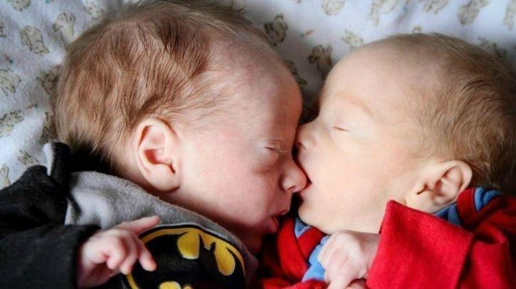 Identical Twins Cheat Death In The Womb By Hugging Each Other