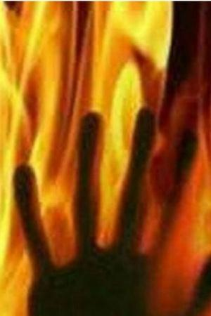 Minor Girl Sets Herself On Fire After A Few Men Harassed And Blackmailed Her In Meerut