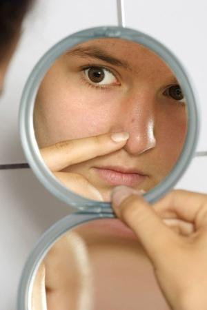 Tired Of Recurring Pimples Here Are Simple Home Remedies Thatll Help You Get Rid Of Them Stat