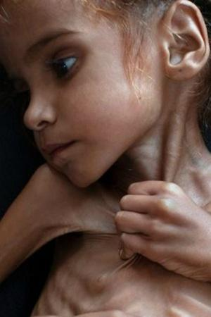 20 Million Yemenis Are Food Deprived And 250000 Face Death And Destitution Due To War