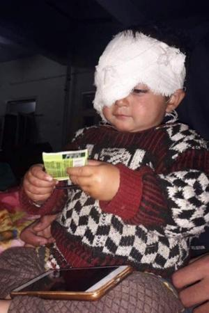 Doctors Remove Pellet From Kashmirs Youngest Victims Eye May Not Get Her Vision Back