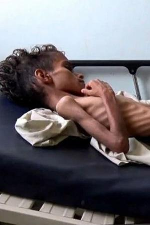Famine In Yemen Mockery Of Agrarian Crisis By PMO More Top News