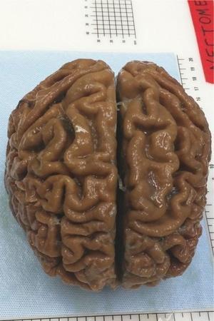 preserved brain