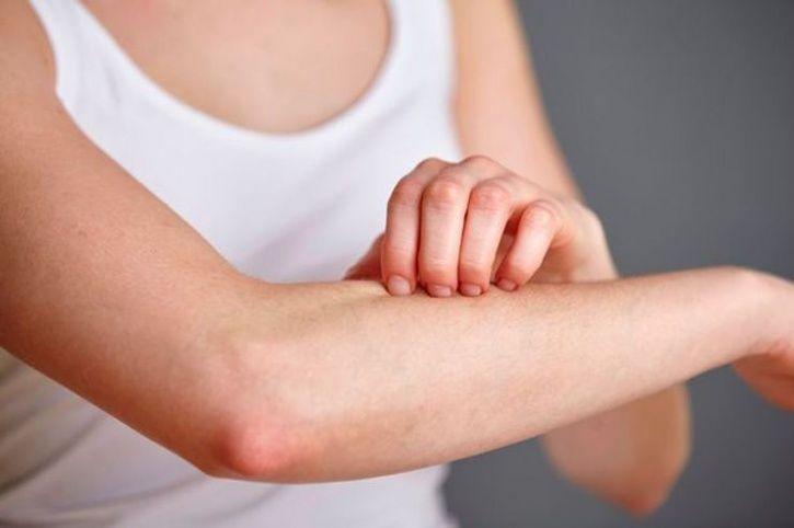 human body skin bacteria