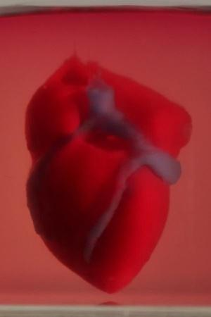 3Dprinted heart
