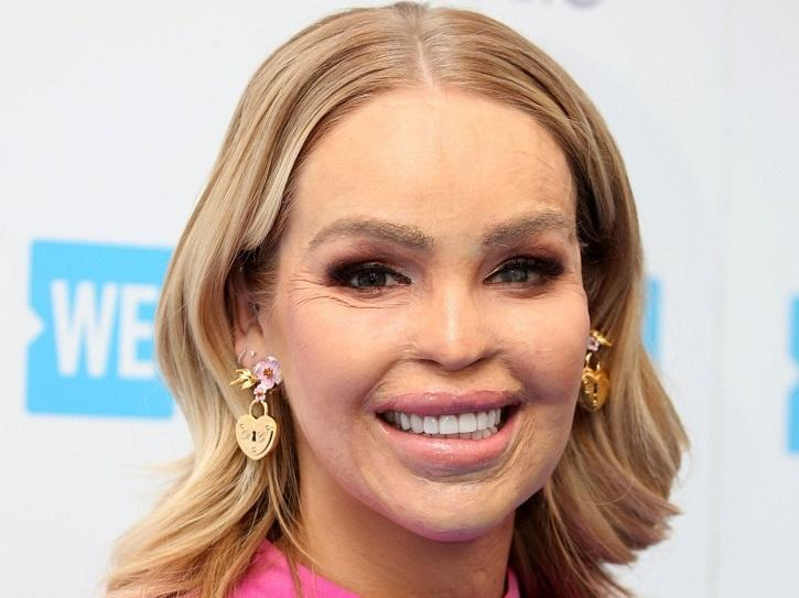 English Activist Katie Piper Is Bowled Over By