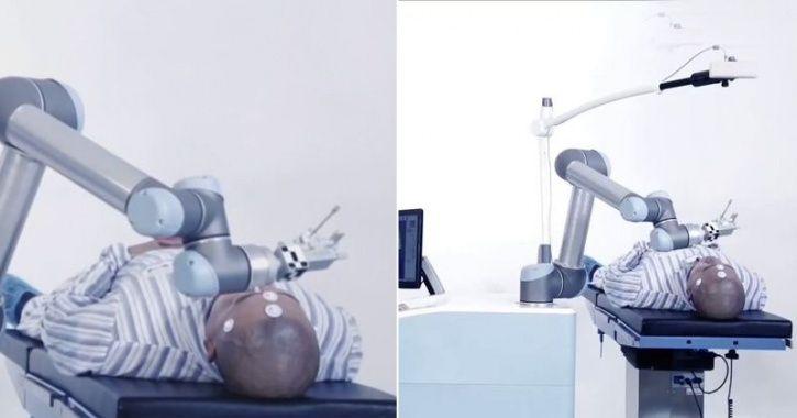 Meet Remebot, China's First Neurosurgery Robot