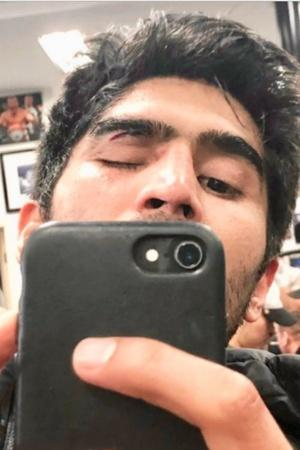 Boxer Vijender Singh Suffers Injury During Sparring To Miss First Bout In US Pro