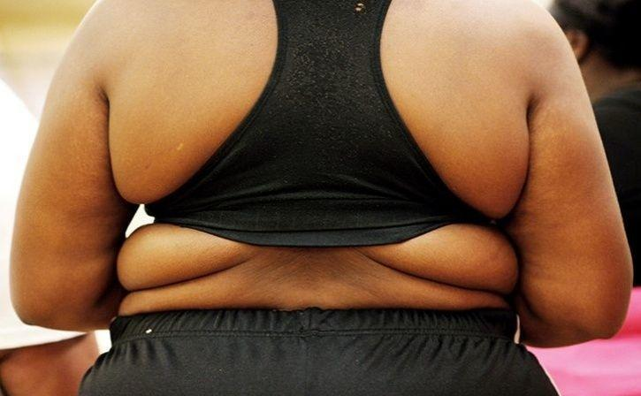 Obesity Generating Diet May Affect Old Adults