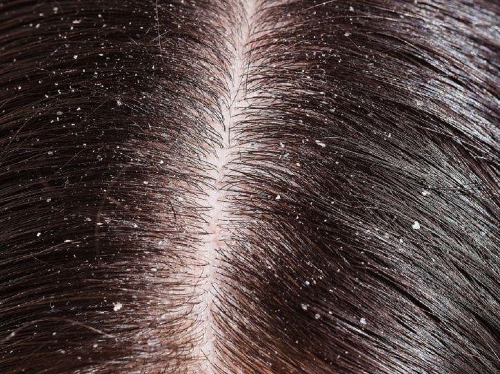Dandruff treatment:Dandruff? Why You Should Not Apply Hair Oil