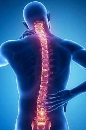 AI spine