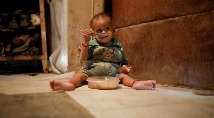 Bill Gates malnutrition