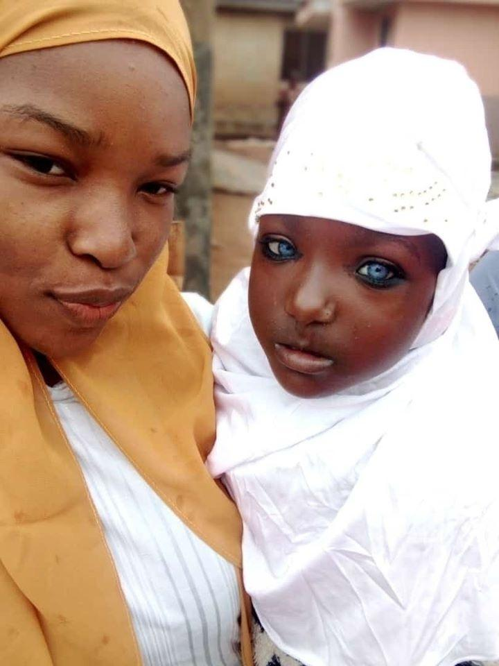 African woman abandoned by husband for blue eyes