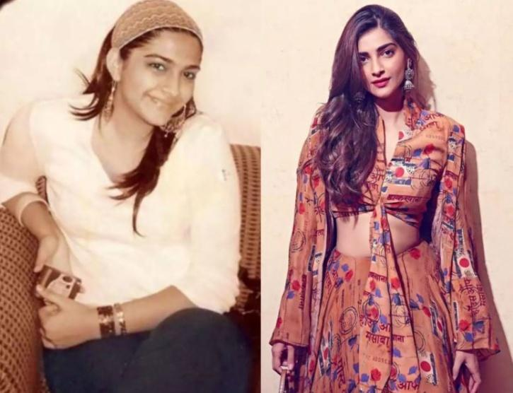 Sonam Kapoor: Before and After / Indiatimes