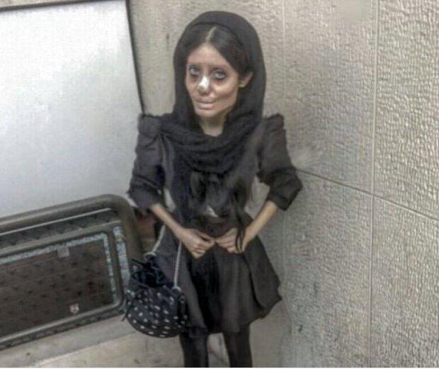 "Last year, Iranian teen Sahar Tabar hit the headlines after insisting she'd had ""50 surgeries"""