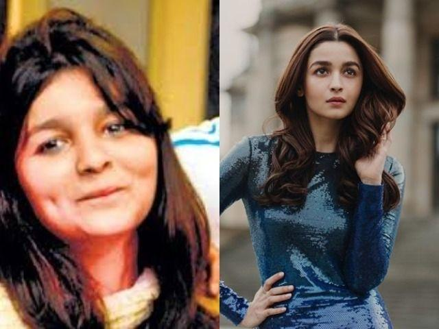 Alia Bhatt: Before and After / Indiatimes