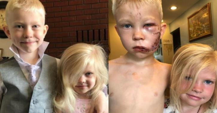 Bridger saved his sister from dog attack