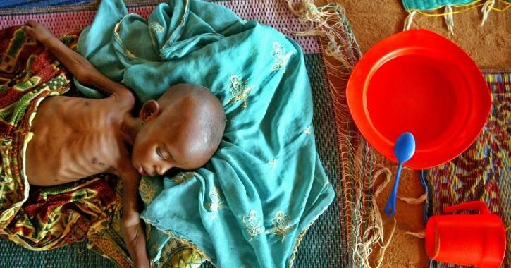 chronic hunger worsening in the world due to COVID-19 claims UN report