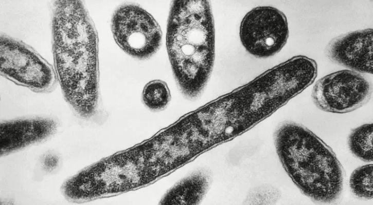 Legionnaires disease virus