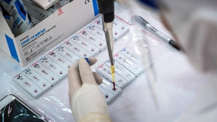 Rapid antigen test COVID-19