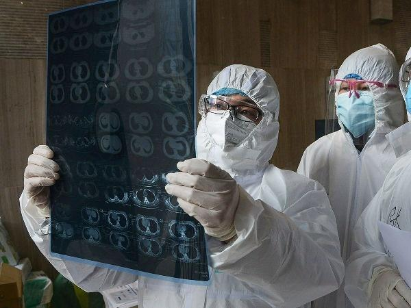 india covid doctors x ray