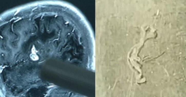 brain worm chen