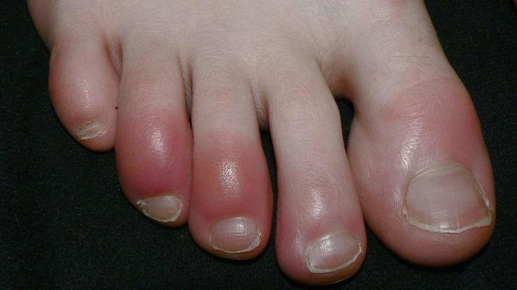 Patients who develop swollen toes and red and purple lesions