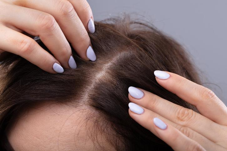 Patients Suffer Hair Loss Severe COVID-19 Recovery Phase