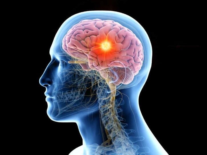 Israeli Scientists Find Major Breakthrough In Curing Lethal Brain Cancer