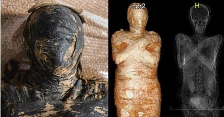 World's 1st Pregnant Ancient Mummy Discovered, Was 7 Months Pregnant