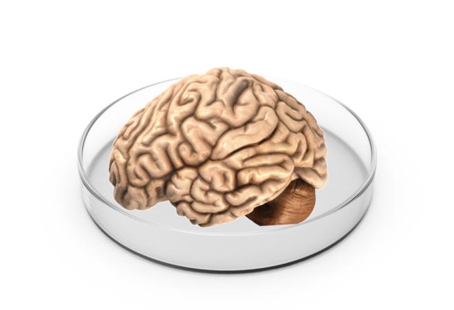 Human brain organoid