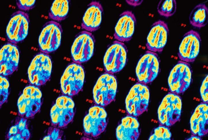 Brain tumour, brain cancer