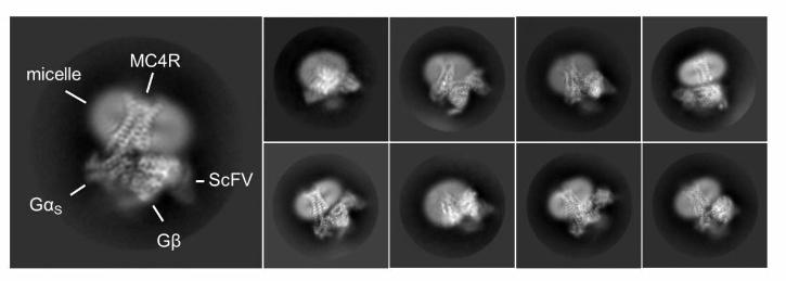 Electron microscopy images representing different views of the MC4 receptor bound to setmelanotide, in complex with proteins activated by the binding