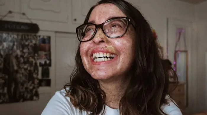 People suffering from this rare condition have an average life expectancy of just 37. However, Andrea is optimistic about her future and takes all necessary precautions to reduce risks.