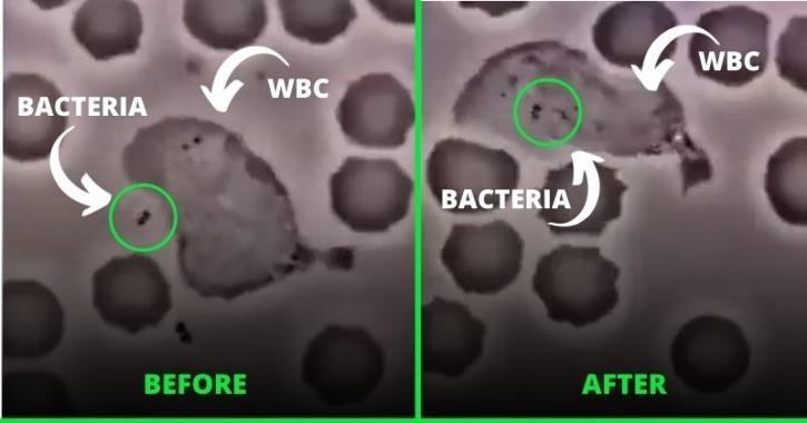 white blood cells killing bacteria