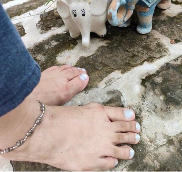 Toe Grey
