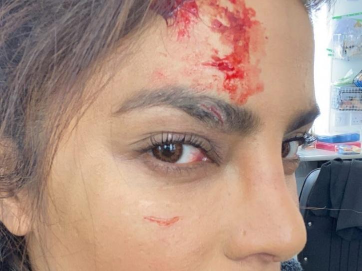 Priyanka Chopra injured on the sets of Citadel.