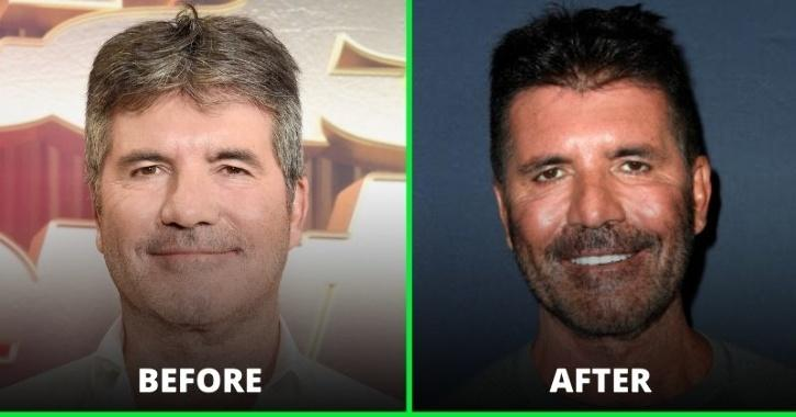 weight loss ageing
