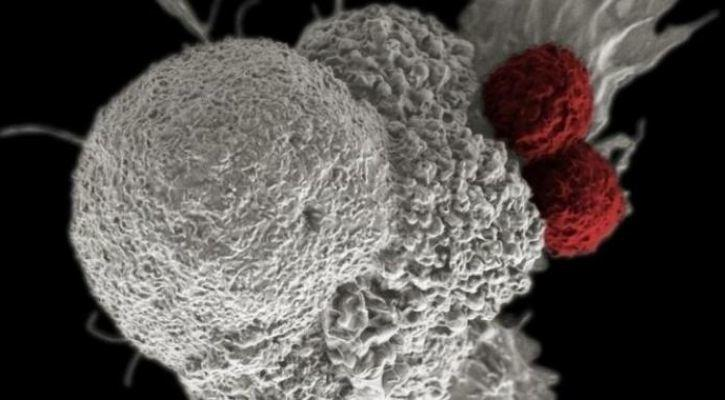 cancer laser