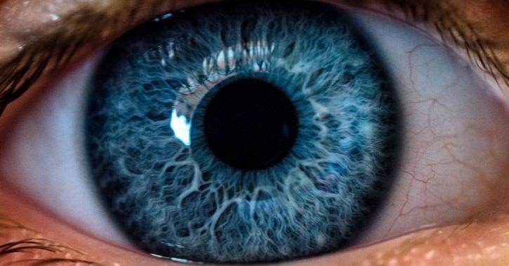 artificial corneal implant